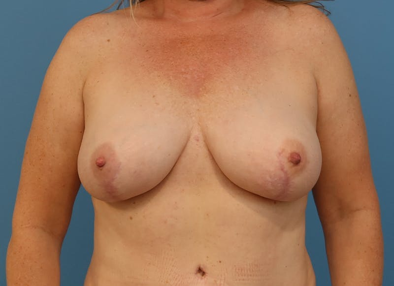 Breast Reconstruction - Hybrid Gallery - Patient 32790442 - Image 2