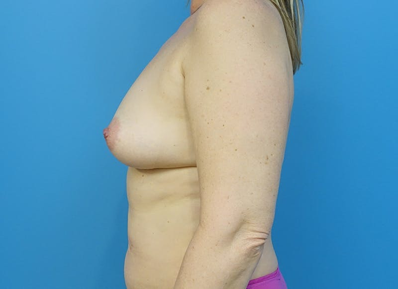 Breast Reconstruction - Hybrid Gallery - Patient 32790442 - Image 5