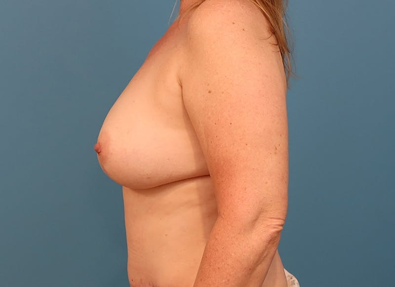 Breast Reconstruction - Hybrid Gallery - Patient 32790442 - Image 6