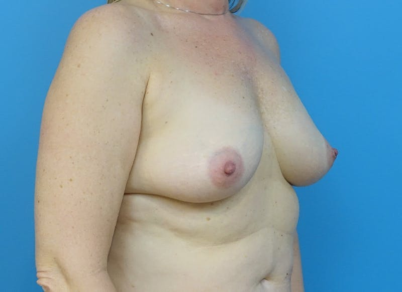 Breast Reconstruction - Hybrid Gallery - Patient 32790442 - Image 7