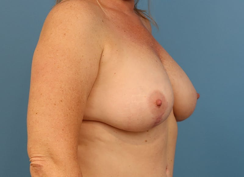 Breast Reconstruction - Hybrid Gallery - Patient 32790442 - Image 8