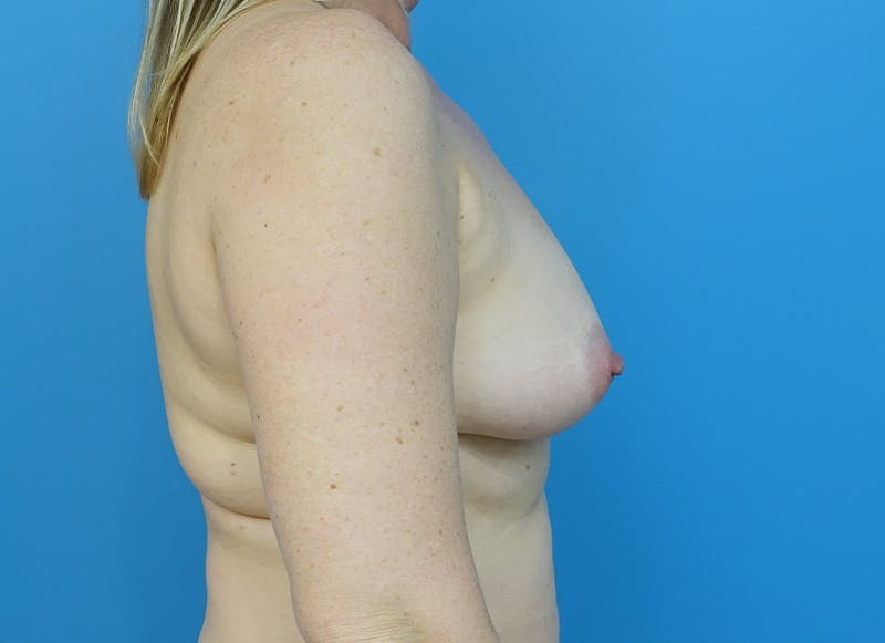 Breast Reconstruction - Hybrid Gallery - Patient 32790442 - Image 9