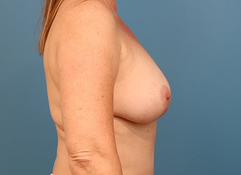 Breast Reconstruction - Hybrid Gallery - Patient 32790442 - Image 10