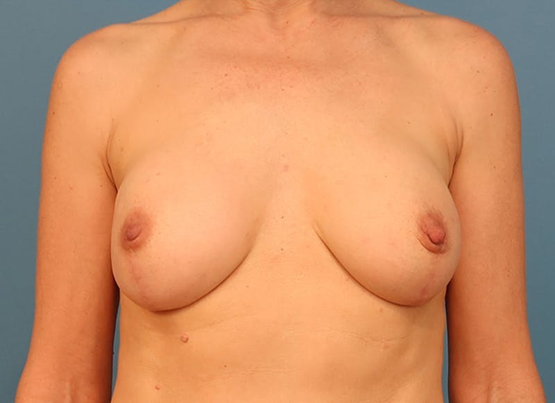 Breast Reconstruction - Hybrid Gallery - Patient 32790455 - Image 2