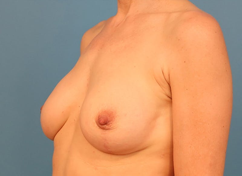 Breast Reconstruction - Hybrid Gallery - Patient 32790455 - Image 4