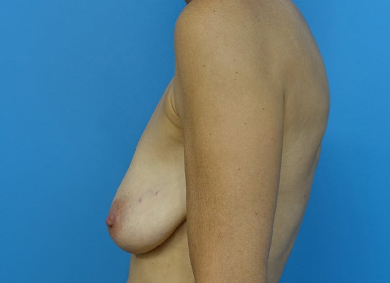 Breast Reconstruction - Hybrid Gallery - Patient 32790455 - Image 5