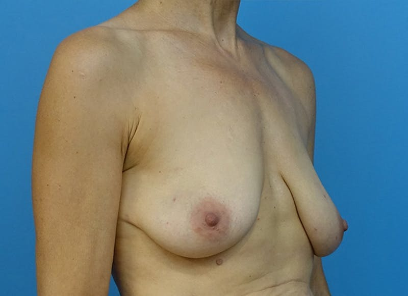 Breast Reconstruction - Hybrid Gallery - Patient 32790455 - Image 7