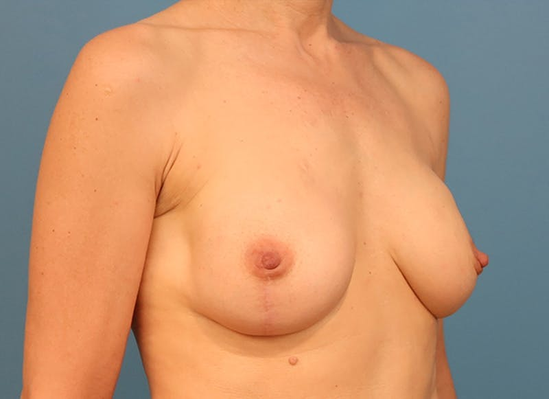 Breast Reconstruction - Hybrid Gallery - Patient 32790455 - Image 8