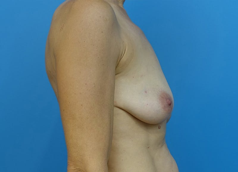Breast Reconstruction - Hybrid Gallery - Patient 32790455 - Image 9