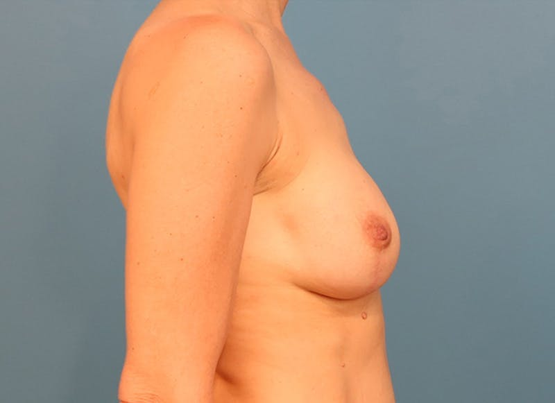 Breast Reconstruction - Hybrid Gallery - Patient 32790455 - Image 10