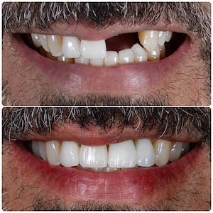 Close up before and after photos of teeth fixed with dental veneers in Beverly Hills