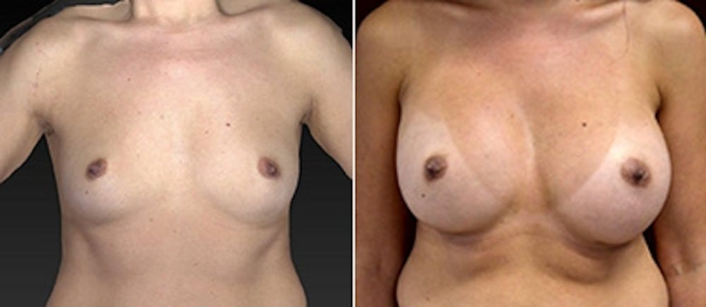 Breast Augmentation Gallery - Patient 4416062 - Image 1
