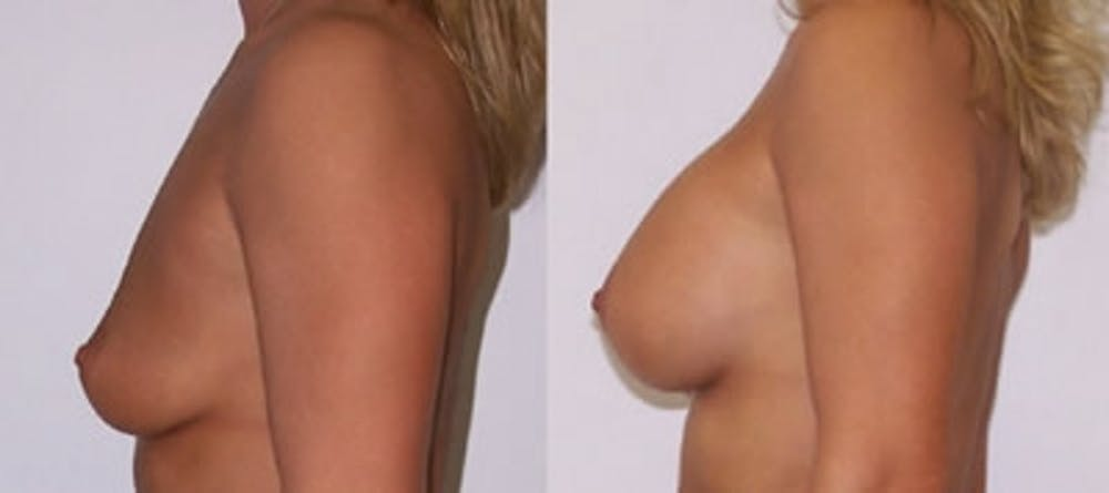Breast Augmentation Gallery - Patient 4566933 - Image 1