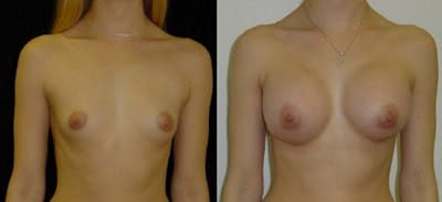 Breast Augmentation Gallery - Patient 4566934 - Image 1