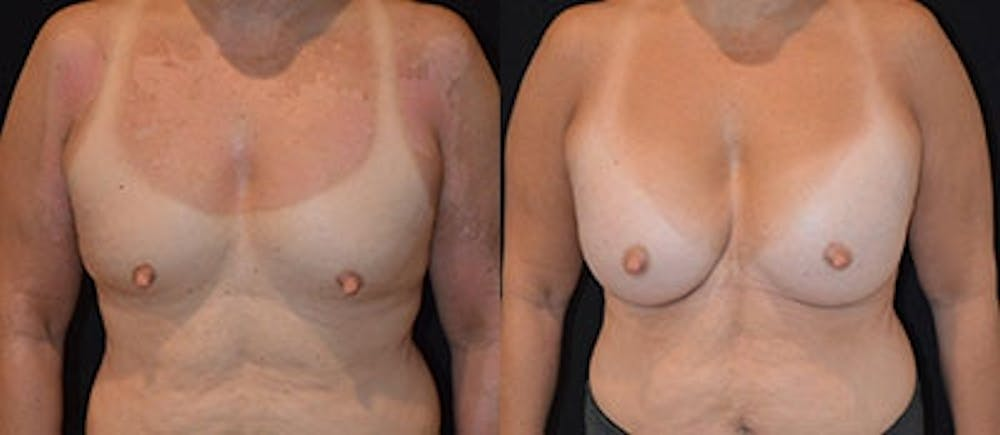 Breast Augmentation Gallery - Patient 4566935 - Image 1