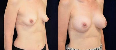 Breast Augmentation Gallery - Patient 4566936 - Image 1