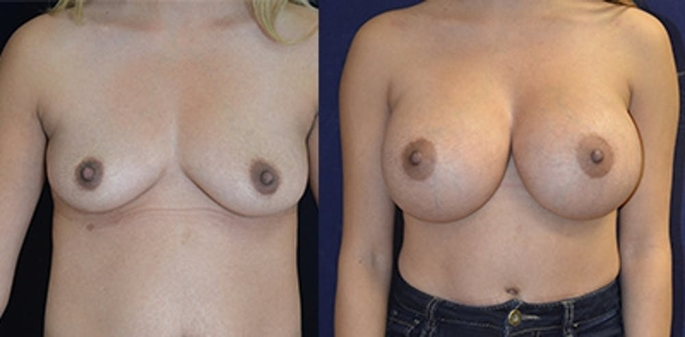 Breast Augmentation Gallery - Patient 4566937 - Image 1