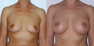 Breast Augmentation Gallery - Patient 4566938 - Image 1