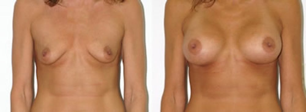 Breast Augmentation Gallery - Patient 4566939 - Image 1