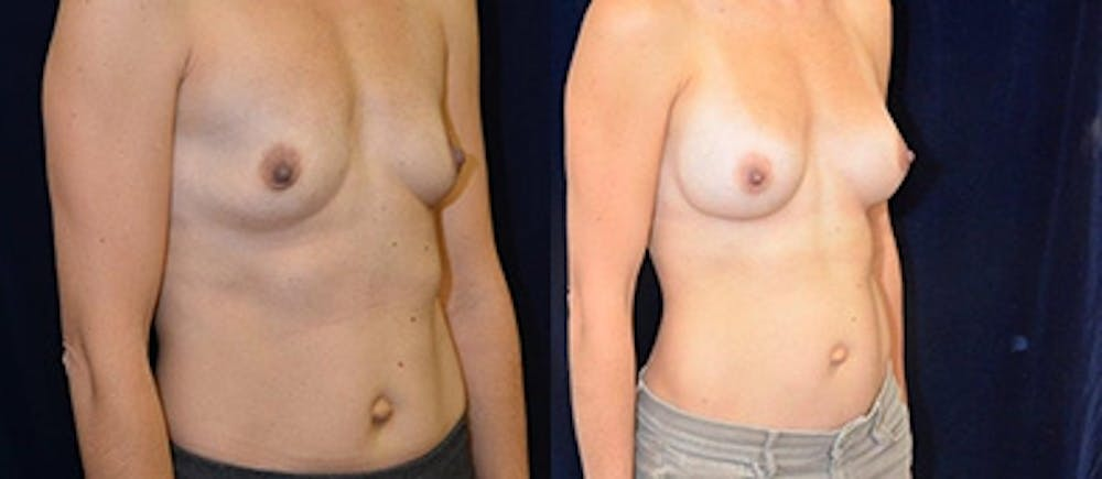 Breast Augmentation Gallery - Patient 4566941 - Image 1