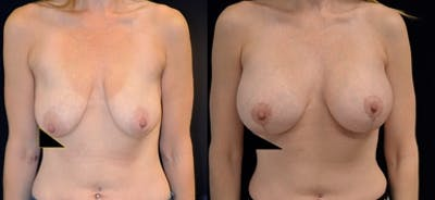 Breast Lift Gallery - Patient 47119792 - Image 1