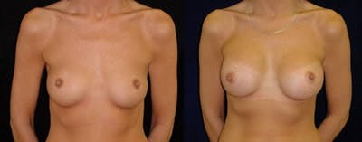 Breast Augmentation Gallery - Patient 4566955 - Image 1