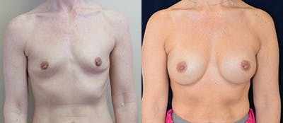Breast Augmentation Gallery - Patient 4566956 - Image 1