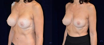 Breast Augmentation Gallery - Patient 4566957 - Image 1