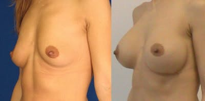 Breast Augmentation Gallery - Patient 4566958 - Image 1