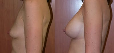 Breast Augmentation Gallery - Patient 4566959 - Image 1