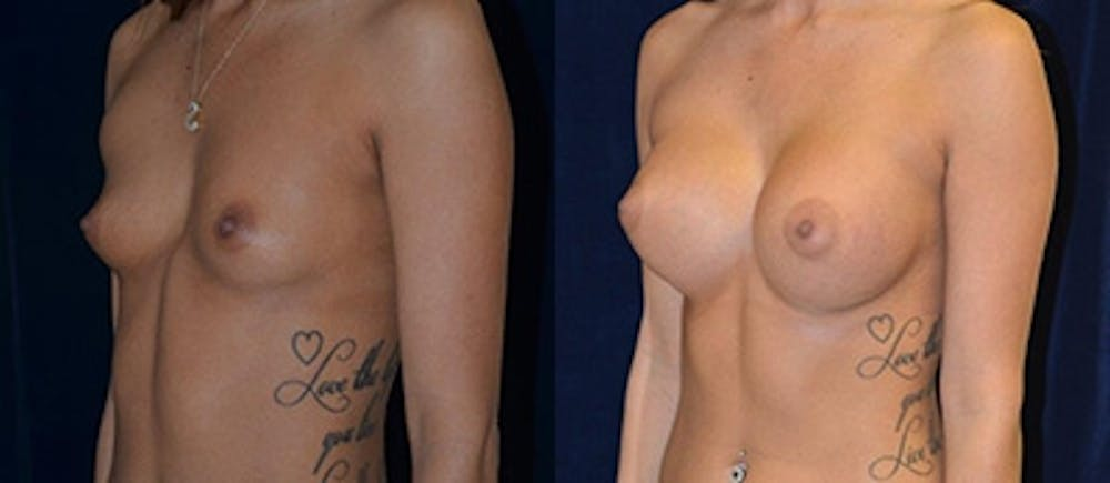 Breast Augmentation Gallery - Patient 4566960 - Image 1