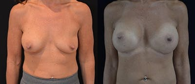 Breast Augmentation Gallery - Patient 4566961 - Image 1