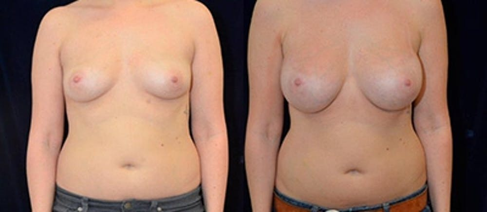 Breast Augmentation Gallery - Patient 4566964 - Image 1