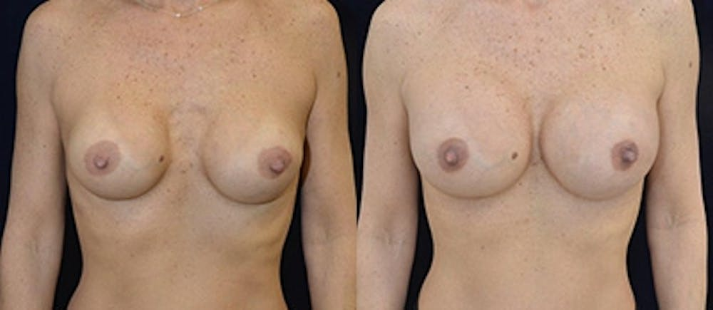 Breast Augmentation Gallery - Patient 4566965 - Image 1