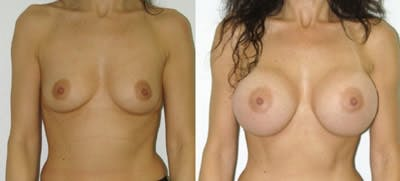Breast Augmentation Gallery - Patient 4566966 - Image 1
