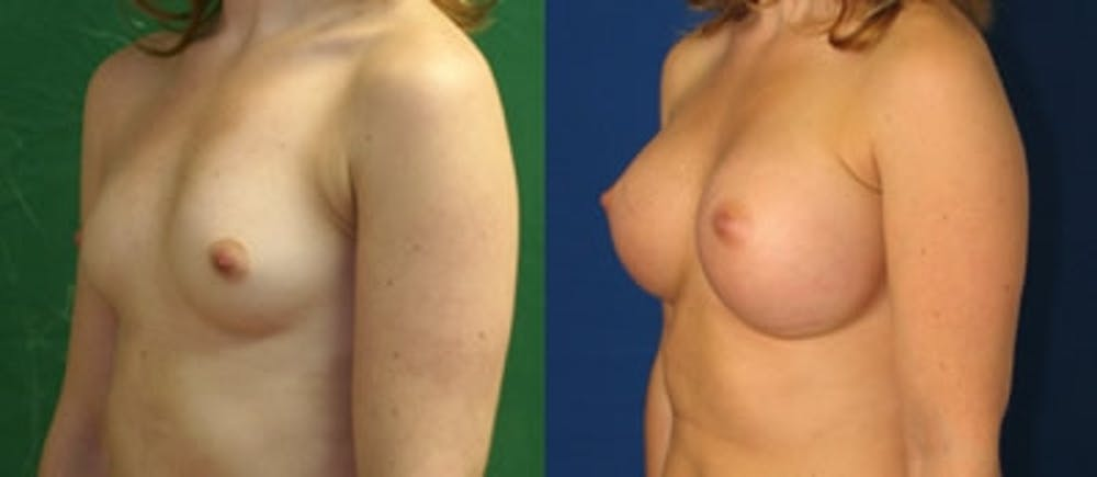Breast Augmentation Gallery - Patient 4566967 - Image 1
