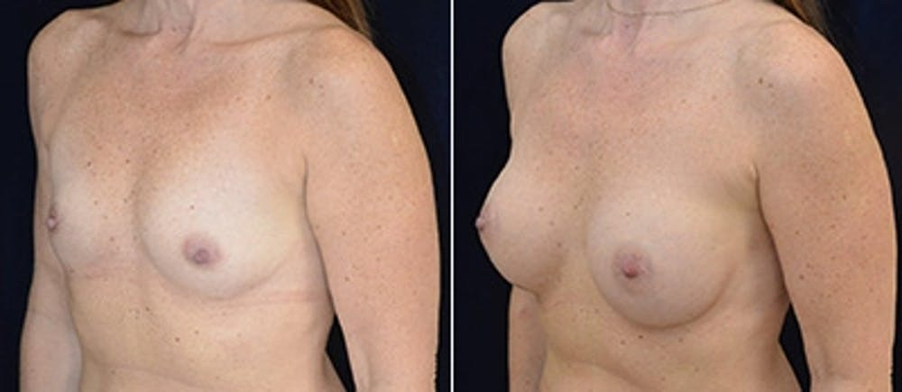 Breast Augmentation Gallery - Patient 4566968 - Image 1