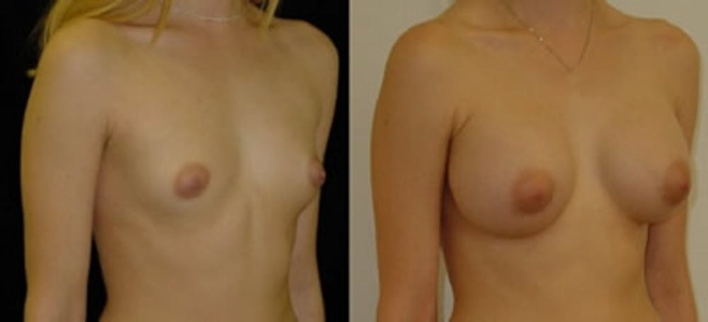 Breast Augmentation Gallery - Patient 4566970 - Image 1