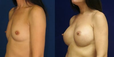 Breast Augmentation Gallery - Patient 4566971 - Image 1