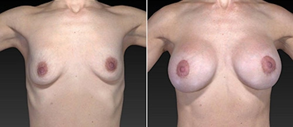 Breast Augmentation Gallery - Patient 4566972 - Image 1