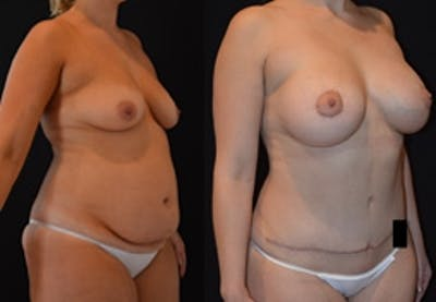 Breast Augmentation Gallery - Patient 4566973 - Image 1