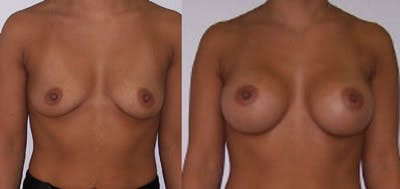Breast Augmentation Gallery - Patient 4566974 - Image 1
