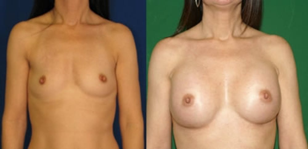 Breast Augmentation Gallery - Patient 4566975 - Image 1
