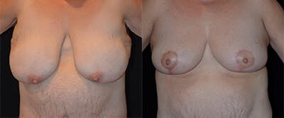 Breast Reduction Gallery - Patient 4566977 - Image 1