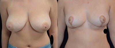 Breast Reduction Gallery - Patient 4566978 - Image 1