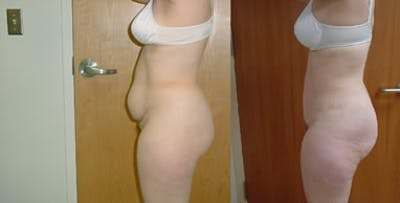 Abdominoplasty Gallery - Patient 4566997 - Image 1