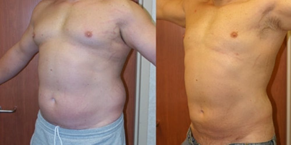 Liposuction Gallery - Patient 4416059 - Image 1