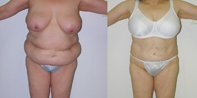 Liposuction Gallery - Patient 4567000 - Image 1