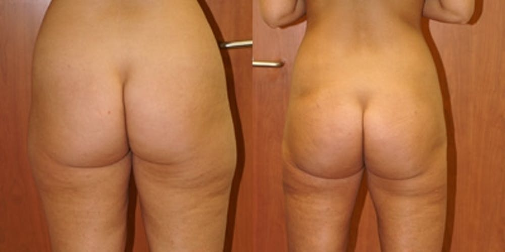 Liposuction Gallery - Patient 4567001 - Image 1