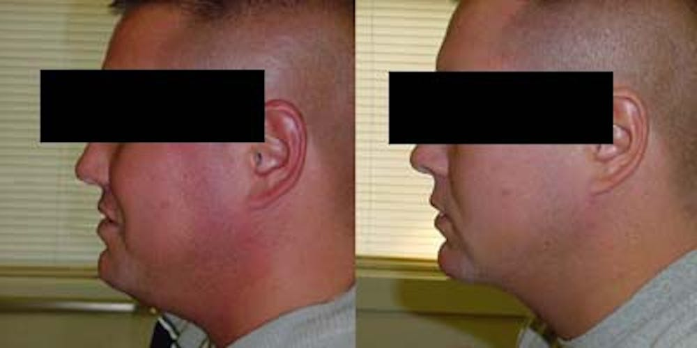 Liposuction Gallery - Patient 4567002 - Image 1